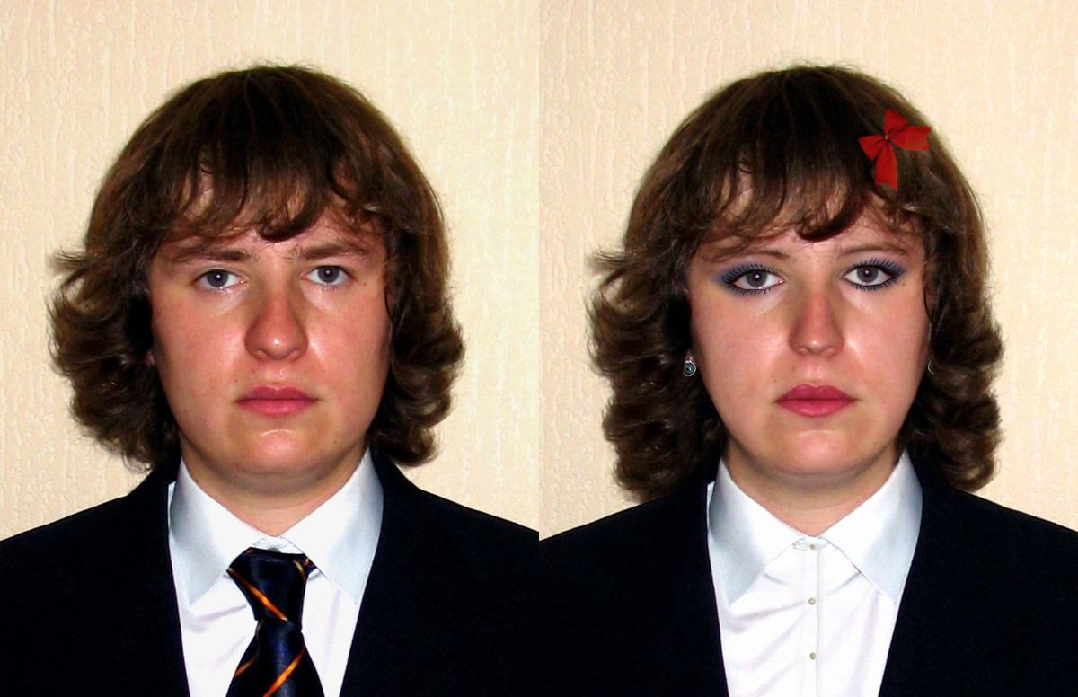 Операция по смене пола фото