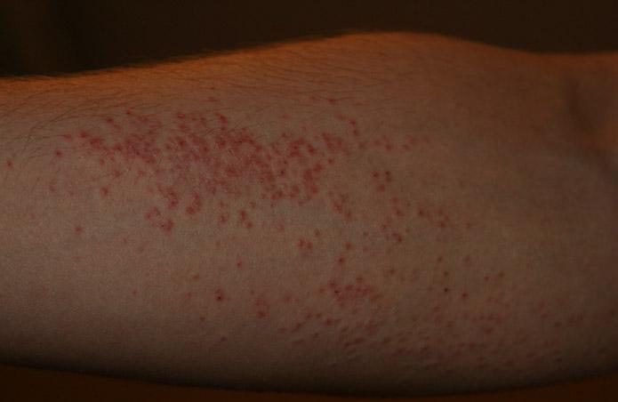 как высыпает аллергия на теле