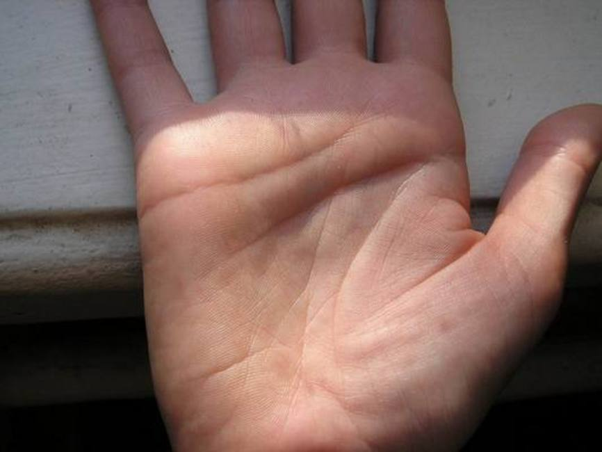Двойные линии на ладоне (2 фото)