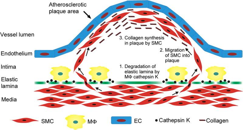Облитерирующий атеросклероз артерий нижних конечностей лечение