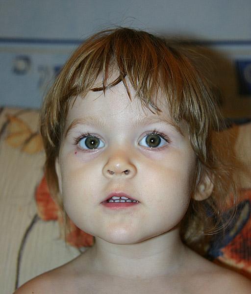 Гемангиома под глазом у ребенка фото