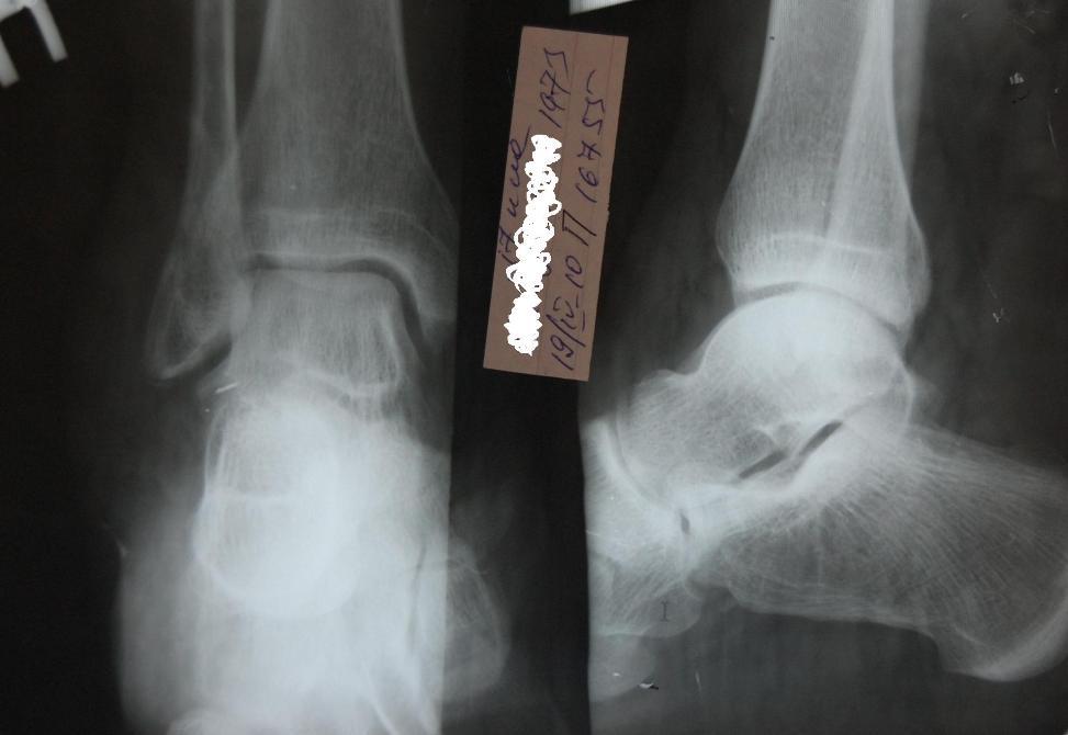 Опухла косточка на ноге и болит как лечить причины