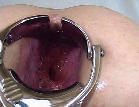 rasshirenie-veni-v-analnom