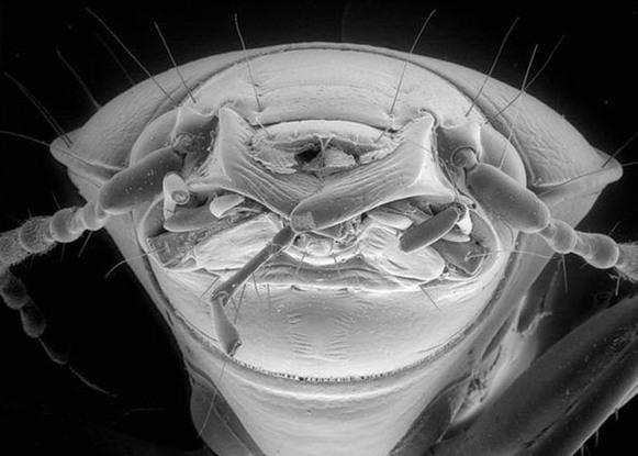 Метки вирусы микробы фото шок