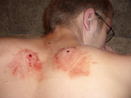 ранение в спину