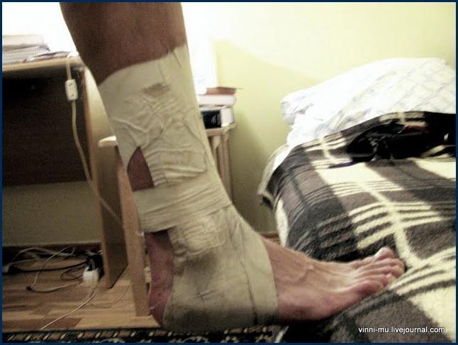 Если сломал ногу парень секс