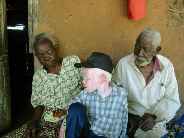 an analysis of the blankenberg about albinism of black africans Albinism: awareness, attitudes and level of albinos' predicament in sukumaland, tanzania methusela m masanja1, zebedayo s k mvena2, kim a kayunze3 1local.